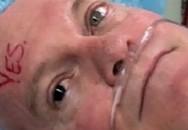 Người đàn ông có một mắt đen, một mắt xanh