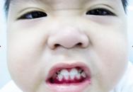 Phòng ngừa viêm nướu răng cho trẻ