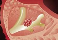Cơ chế mới của biến đổi tế bào ung thư tuyến tụy