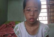 Cô bé suốt 12 năm không thể khép mắt
