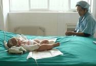 Bé 9 tháng tuổi bỏng nặng vì ngã vào bếp lửa