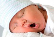 Nguy cơ tự kỷ đối với em bé sinh ở tuần thứ 39