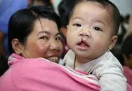 Phẫu thuật miễn phí cho trẻ hở môi tại TPHCM