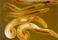 Nguy cơ mắc bệnh giun đầu gai vì ăn lươn, ếch