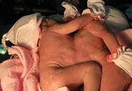 Hai bé gái chung nhau ngực và bụng