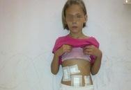 Búi tóc nặng 0,5 kg trong bụng bé gái