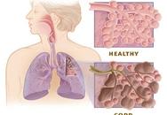 Khám, tư vấn miễn phí bệnh phổi tắc nghẽn mạn tính