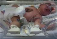 Hai bé sơ sinh có tim nằm ngoài cơ thể
