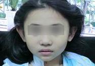 Bệnh viêm mạch máu cấp tính tấn công trẻ em