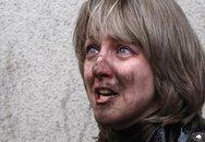 Belarus: Nổ lớn tại nhà ga tàu điện ngầm, gần 140 thương vong