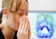 Viêm xoang hay bị chẩn đoán nhầm thành viêm mũi dị ứng