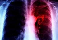 Tìm ra cách chữa lành trái tim