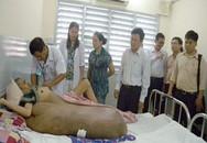 Hội chẩn liên bệnh viện ca khối u nặng 80 kg