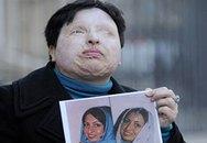 Một phụ nữ bị đổ axit vào mắt vì từ chối lời cầu hôn
