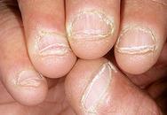 Chẩn bệnh qua...9 kiểu móng tay