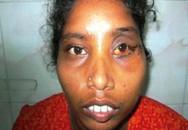 Cô gái có 2 răng mọc trong... mắt