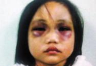 Bé gái 5 tuổi bị cha hành hạ tàn nhẫn