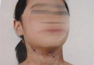 Bé 6 tuổi bị bố mẹ đánh đập bỏ ngoài nghĩa trang: Ông nội nói gì?