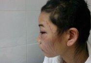 Giây phút tự rạch mặt của người vợ bị chồng bạo hành