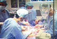 Phẫu thuật khối u nặng 90 kg: 10 giờ nín thở chờ đợi