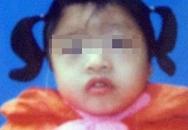 Tìm được bố mẹ bé gái 5 tuổi nghi bị xâm hại tình dục