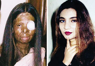 Kinh hoàng nạn tạt axit ở Pakistan