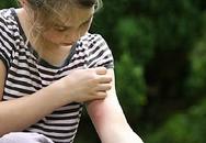 20% dân số Việt Nam mắc các bệnh dị ứng