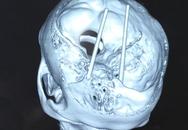 Kinh hãi bệnh nhân bị 2 cây đũa đâm từ mắt vào não