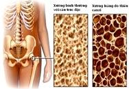 Tuân thủ 5 bước để phòng ngừa loãng xương