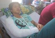 Hỗn chiến, một thanh niên bị cắt đứt 2/3 lưỡi