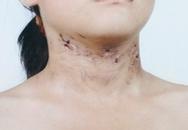 Nghi án bé gái bị bố và dì ghẻ đánh gãy xương sườn