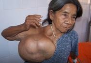 Phẫu thuật cho người có khối u khổng lồ