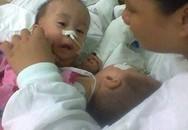 2 bé sơ sinh dính tim: Sinh con 11 tháng, bế con được 1 giờ