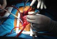 """Trái tim """"lỗi nhịp"""" nằm bên phải, bé 3 tuổi thường xuyên đau đớn"""