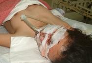 Bị thương nặng vì nổ bình khí hydro bơm bóng bay