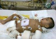 Bé trai cụt chân, mất cả cha lẫn mẹ trong tai nạn