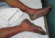 Kinh hãi bàn chân bị hoại tử vì liên cầu lợn