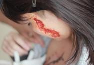 Thiếu nữ bị xăm quái vật lên mặt và ngực được bồi thường 400 triệu đồng