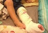 Giáo viên bạo hành làm gãy chân trẻ 3 tuổi