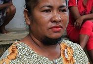 Người phụ nữ mọc râu 19 năm không dám lộ mặt