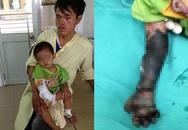 Kinh hãi bé bị hoại tử cánh tay do cha mẹ tự chữa bỏng