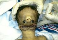 Em bé có hai tai hợp nhất vì mẹ sử dụng chất gây nghiện khi mang thai