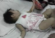 Bé 1 tuổi suýt chết vì rơi xuống sông