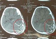 Bị ti vi rớt trúng đầu, bé 2 tuổi chết thương tâm