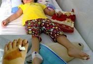 Bé gái bị tấm chắn bô xe máy cắt đứt bàn chân
