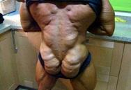 """Người đàn ông """"biến thành"""" gà tây do lạm dụng steroid"""