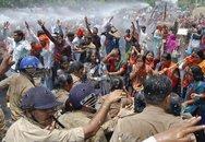 Thiếu nữ Ấn Độ bị cưỡng hiếp và đổ axit vào mặt
