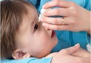 5 điều quan trọng cha mẹ cần làm khi bé bị đau mắt đỏ