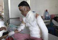Vợ chồng trẻ bỏng nặng vì ăn lẩu bếp cồn
