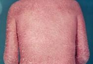 Vẩy nến thể đỏ da toàn thân – Khó khăn trong việc điều trị
